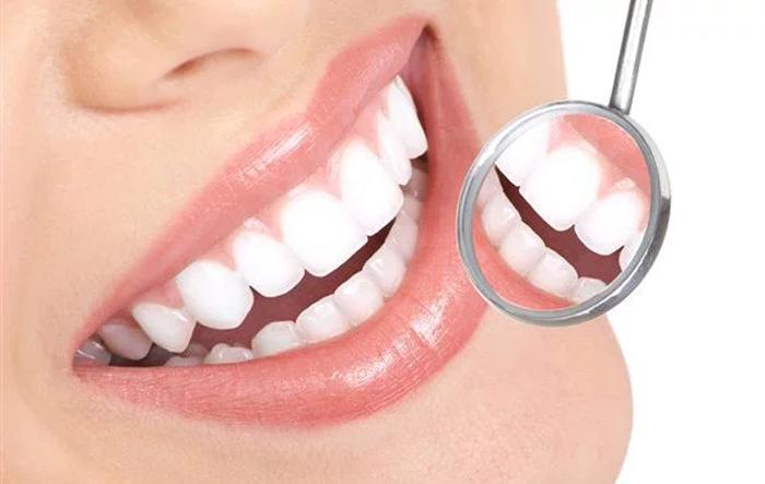 O que é Implante Dentário, como fazer?